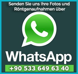 whatsapp-de